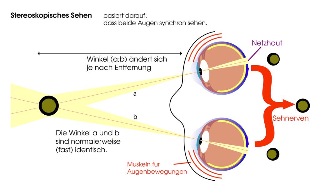 Stereoskopisches Sehen Prismenbrille - In den Gläsern der Prismenbrille sind Prismen eingearbeitet, die mit bloßem Auge meist nicht sichtbar sind. Sie brechen einfallendes Licht allerdings so, dass die Augenmuskulatur entlastet wird und Beschwerden behoben werden.