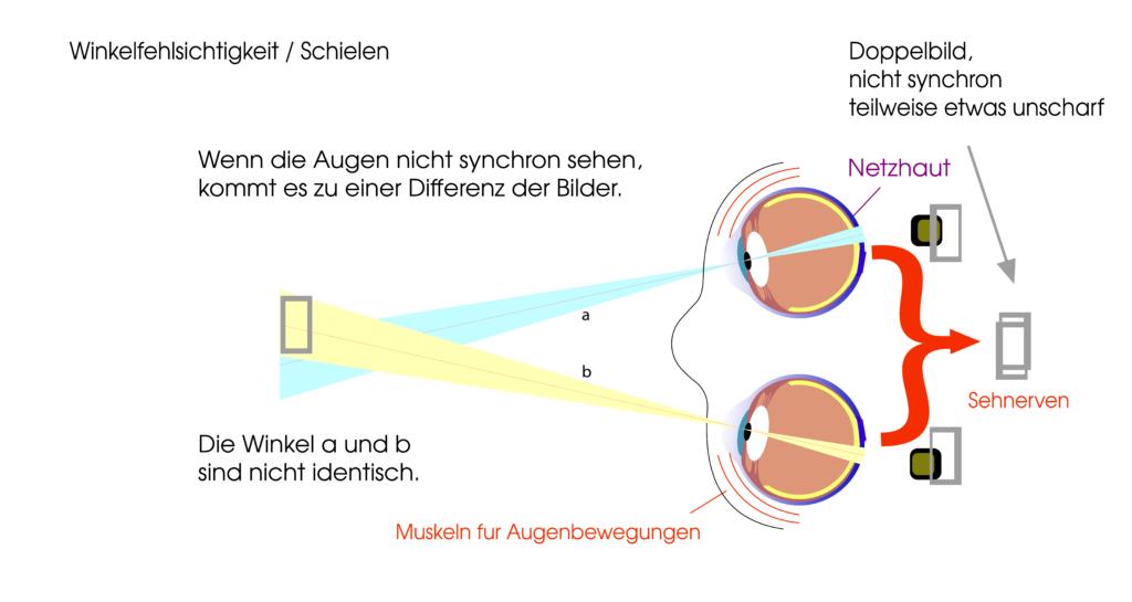 Was macht das Auge bei Winkelfehlsichtigkeit und Schielen?