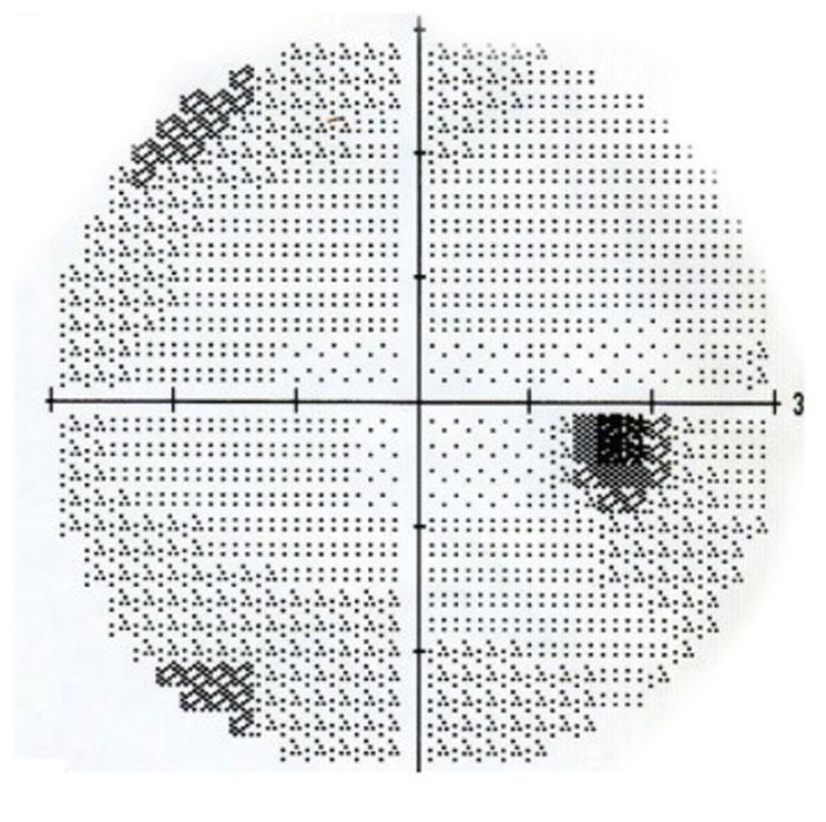 Die Gesichtsfeldmessung wird in der Fachsprache Perimetrie genannt. Beispielhaftes Ergebnis einer Perimetrie